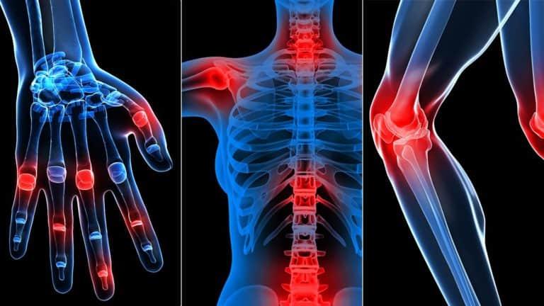 Проблемы заболеваний суставов